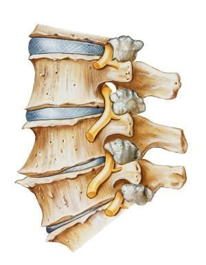 What is a Pinched Nerve, Exactly?: Facet joint hypertrophy may cause radiculopathy symptoms.