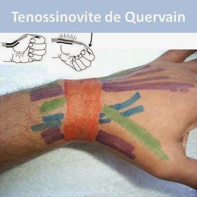 physioclem: Tendinites do punho/mão