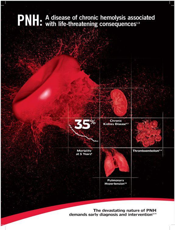 PNH | Paroxysmal Nocturnal Hemoglobinuria | PNHSource.com | Physicians