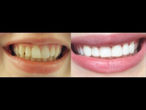 How to get INSTANT STRAIGHT teeth without braces, Veneers & whitening experience BEFORE and AFTER - YouTube