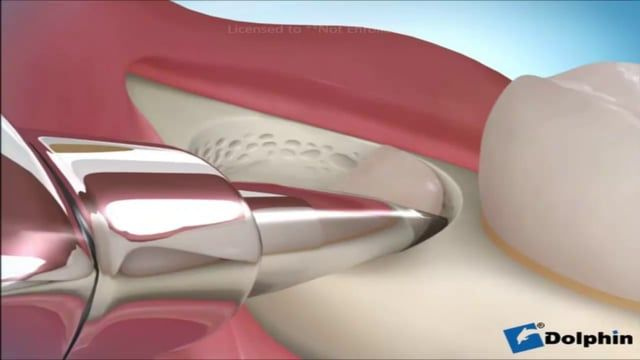 extraccion de muela del juicio en Vimeo