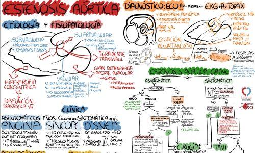 El rollo de las valvulopatías. Estenosis Aórtica