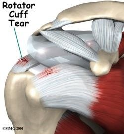 A Rotator cuff tear is a common cause of pain and discomfort among adults. It weakens the shoulder and even the simplest of tasks, such as combing your hair, can become extremely difficult and painful to perform.  Here at Metro Physio we will see what has caused the problem or what maybe causing the problem and work from there. With many years of experiance, we will be able to help and support you!