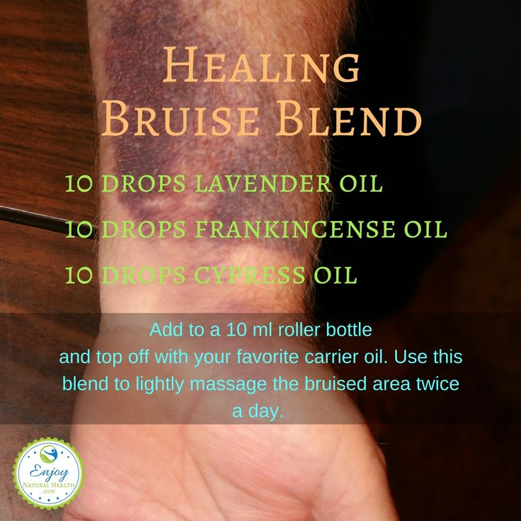 Healing bruise blend made with essential oils: give ti a try if you bruise easily