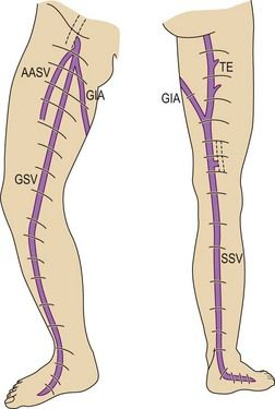 The interfascial veins are: the great saphenous vein (GSV), the proximal part of the anterior accessory saphenous vein (AASV), the small saphenous vein (SSV) and its thigh extension (TE) (Giacomini or femoropopliteal vein; GIA), the medial and lateral marginal veins of the foot and the dorsal foot arch.