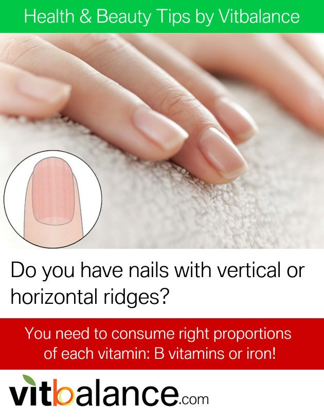 Do you have nails with vertical or horizontal ridges?  You need to consume right proportions of each vitamin: B vitamins or iron!