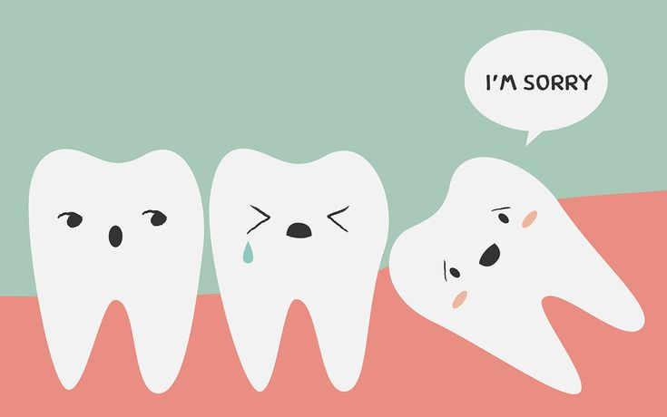 Tips for impacted wisdom teeth! If you're like me (i.e. your burgeoning wisdom teeth are constantly trying to cram themselves in where there's no room and your removal surgery isn't coming soon enough) these are things I've learned do to help with...