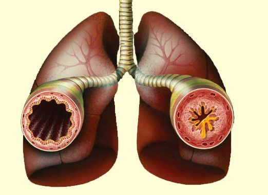 Children with Asthma Lungs * To view further for this item, visit the image link.
