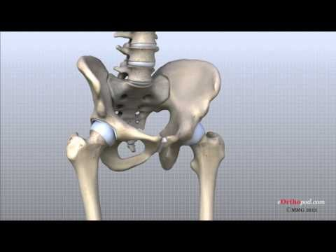 In this episode of eOrthopodTV, orthopaedic surgeon, Randale C. Sechrest, MD, narrates an animated tutorial on the anatomy of the hip joint.