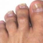 fungal toenail treatment