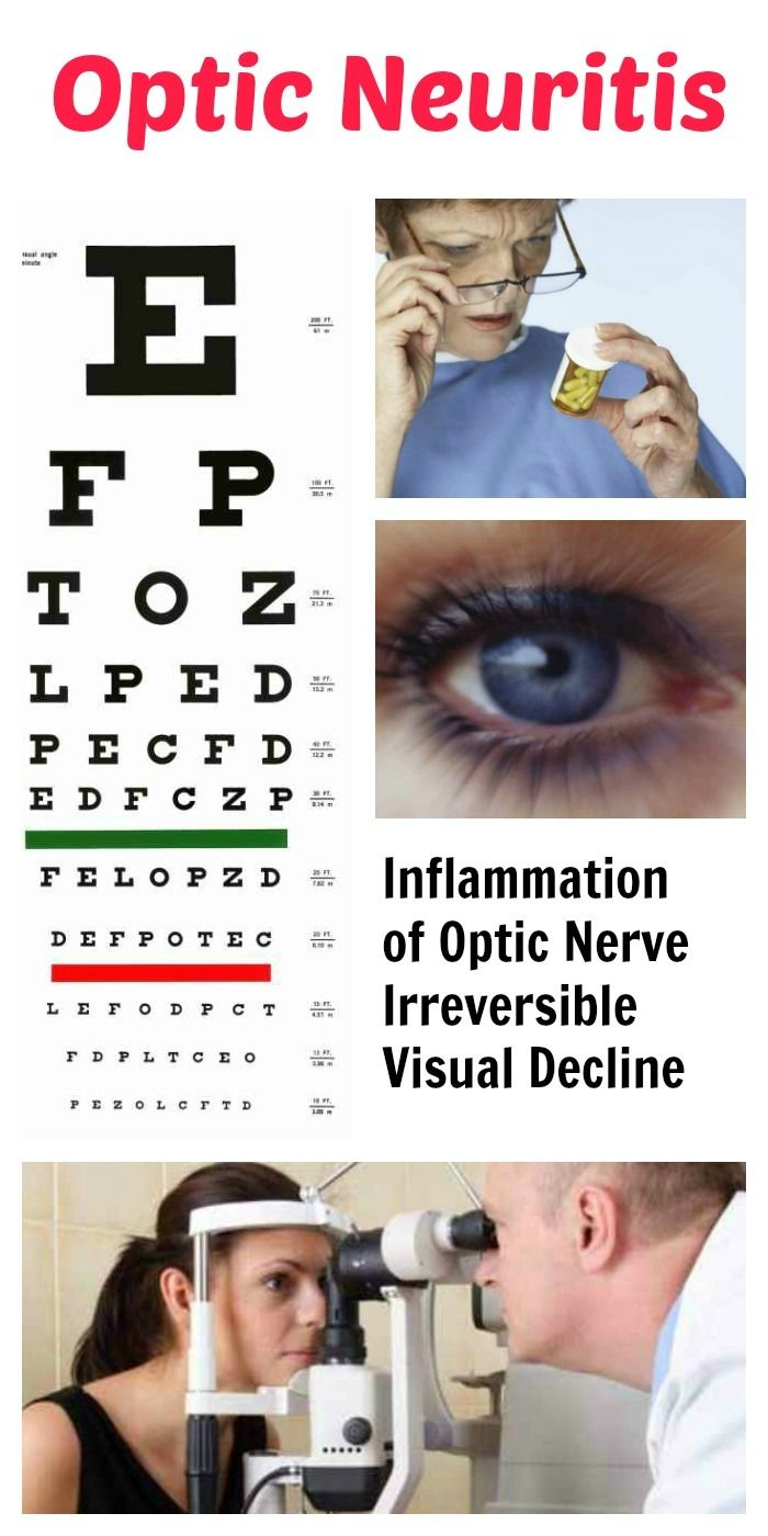 Optic Neuritis MS Multiple Sclerosis Visual Vision Inflammation