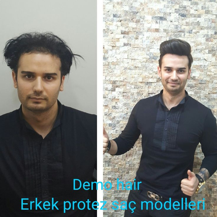 #erkekprotezsacmodellerı #protezsackullanıcıyorumları #protezsacyaptıranlar #protezsacşikayetlerı #protezsac #sacprotezi #protezsaç #protezsacfiyatları #saçprotezfiyatları  #kellık #hair #hairsystem #hairreplacement #hairstylist #bristolhair #demohair