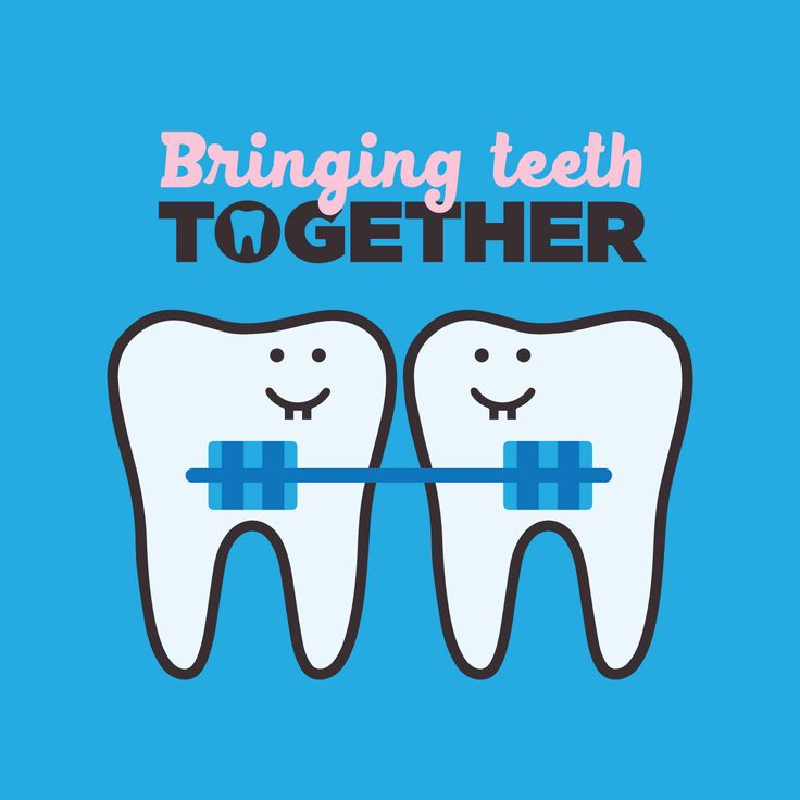 TOGETHER IS BETTER - We love to see your new smile coming together! Comment below with your progress photos, we would love to see them!!