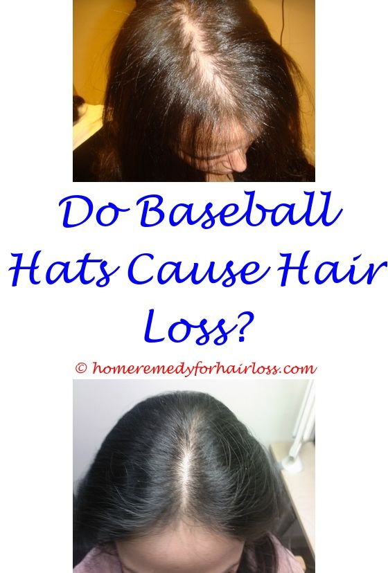 thyroid medicine hair loss - alopecia hair loss in dogs symptoms.does graves disease cause hair loss burning scalp hair loss stress just natural excessive chemicals hair loss treatment 9456969803