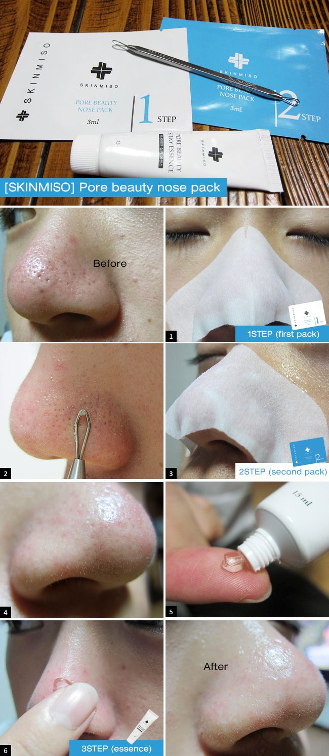 [SKINMISO] Pore beauty nose pack (3 Set Blackhead Remover Program)  The best blackhead remover strip and pore tightening program as 3 step system.  + Not taping remover type + No stimulus + Sold over 5,000 pcs a day group buy in Korea + Ranked the best selling item    in Singapore No.1 commerce. (2012)  Skinmiso 3 step blackhead eraser program is the best solution for the clean nose. by $21.99
