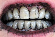 Come Usare il Carbone Attivo Vegetale per Avere Denti Bianchi >>> http://www.piuvivi.com/bellezza/carbone-attivo-vegetale-denti-bianchi-come-fare.html <<<