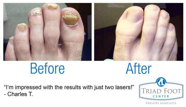 Charles loved the results of only two toenail fungus laser treatments! Look at the difference! #healthyfeet #healthynails #toenailfungus #laser #podiatry http://www.triadfoot.com/foot-care-services/before-after/