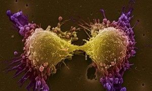 Prostate cancer rates increase