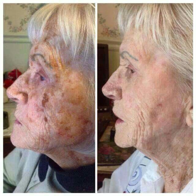 What an improvement!!! NeriumAD helps with all kinds of different types of skin issues. Learn more here http://Rosemary.nerium.com