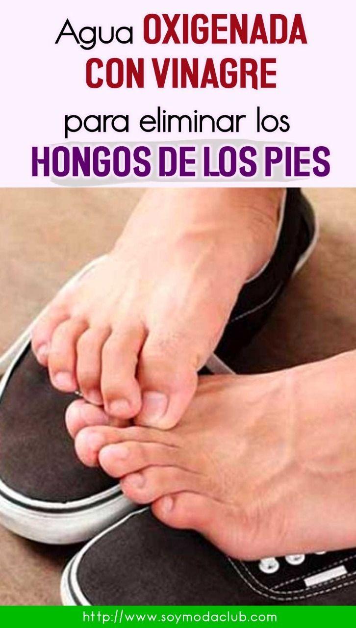 como quitar hongos de los pies uñas