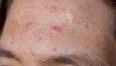 Le sérum qui combat l'acné à tester d'urgence - Astuces de grand mère
