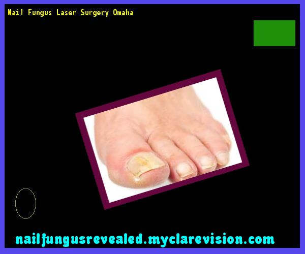 Nail fungus laser surgery omaha - Nail Fungus Remedy. You have nothing to lose! Visit Site Now