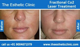Fractional CO2 Laser Treatment, Laser Skin Resurfacing Treatment Before After Photos in Mumbai, India For more information visit http://www.theestheticclinic.com/skin/dermatology/fractional-co2-laser-treatment.html