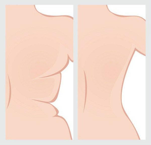 What are the causes of Bra Bulge? Main reason for this condition are weak muscles. The skin around the muscles becomes loose because the muscles are not tigh