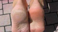 Vous cherchez un remède de grand-mère contre la corne aux pieds ? C'est vrai que la corne sous les talons est difficile à enlever. Ce n'est pas très esthétique. Et si on la laisse, elle peut même être douloureuse. Alors comment faire pour l'enlever et retrouver des pieds tout doux......