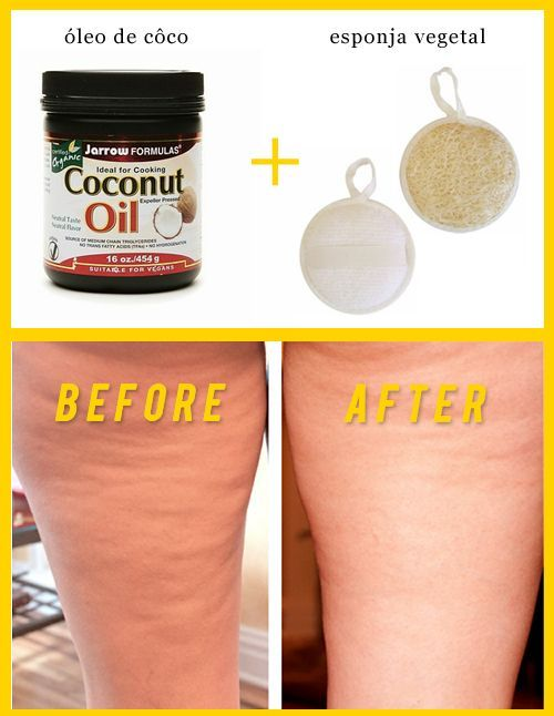 Massage with coconut oil and loofa sponge to eliminate cellulite! I'd add coffee grounds to the coconut oil for the best results!: