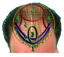Find  for your #HairTransplant Surgery in Delhi.
