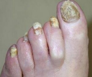 I REALLY NEEDED THIS ONE!  Foot and Nail Fungus Home Remedies ~ Castor oil, apple cider vinegar, tea tree oil, turmeric and garlic are all natural cures for foot and nail fungus. This photo is quite gross, it is an obvious extreme case of foot/nail fungus where the individual had poor foot hygiene. Make sure to always treat any fungus right way to avoid something this bad.