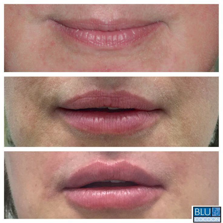 How long does it take for juvederm to settle in lips