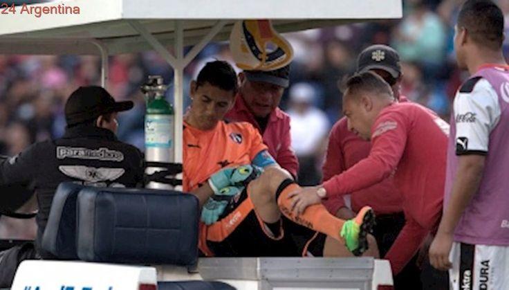 Atlas, con seria lesión del argentino Ustari, empató con Tigres en México