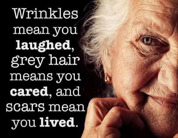 Wrinkles mean you laughed, grey hair means you cared, and scars mean you lived.