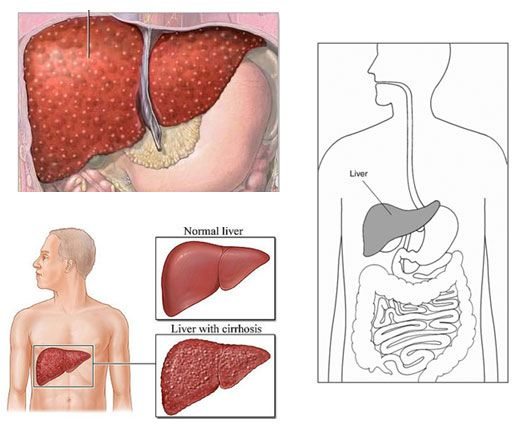 treatment of cirrhosis of the liver nursing essay The study of liver diseases (aasld) position paper represents a thorough   chronic liver disease should have different management implications  on a  medicine ward with skilled nursing in a quiet environment to.
