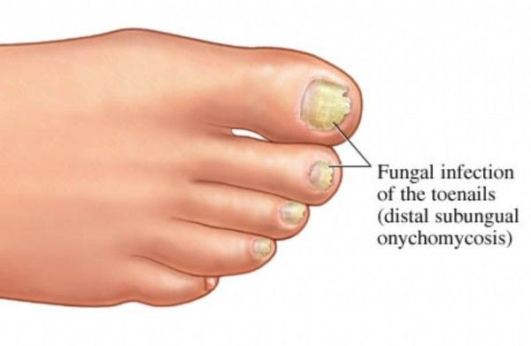 Nail fungus, i.e. the fungal nail infections are the nail changes (also known as onychomycosis), damage to the inner plate of the nails on the hands and feet.