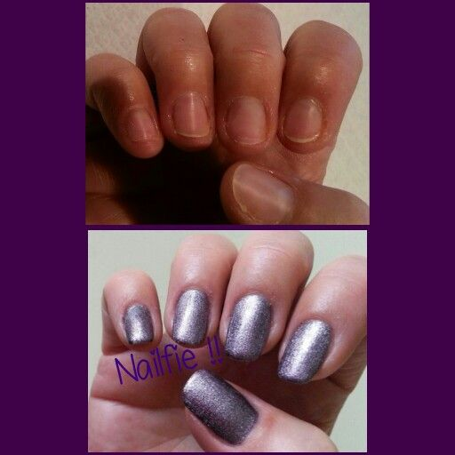 Before After Www Claudiamagicnails Nl Studiomagic Nailsstudystudio Apt
