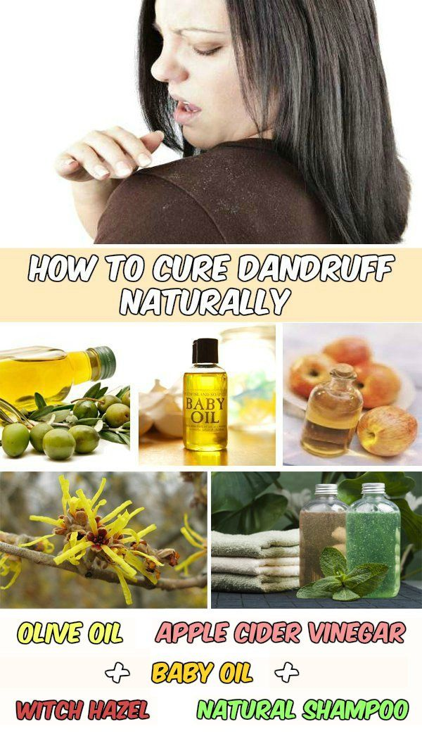 How to cure dandruff naturally