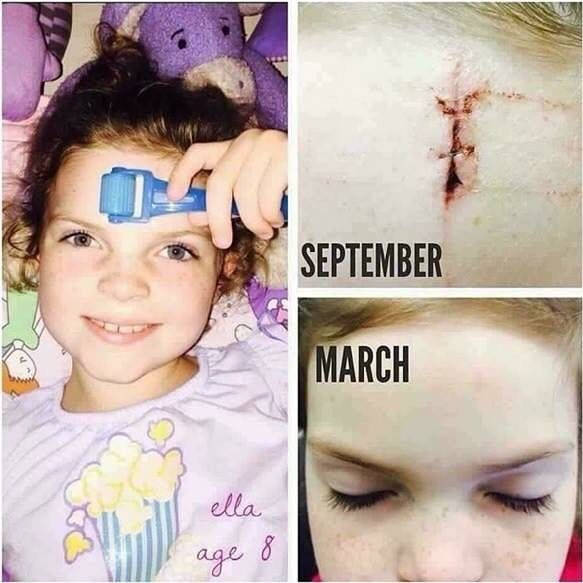 The amp md roller is seriously amazing!! Not just for firm/smooth skin you can roll away stretch marks and scars!! This is RF consultant Britt Bakers daughter check out what she had to say: 6 months ago my sweet daughter Ella fell off the bed doing gymnastics. BOOM...Stitches right in the middle of her forehead....No way to hide a big bad scar there unless she had bangs  Ellas Plastic Surgeon and Dermatologist recommended that she roll her scar with our retinol night serums! Thank heavens…