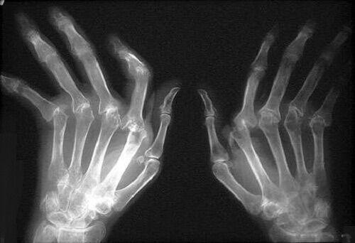Bu hastalık, eklemlerin kıkırdaklarını koruyan ve kaplayan zarlarda iltihaplanmaya neden olan kronik ve dejeneratif bir hastalıktır. Kemik iltihaplandığında hasarlı ve aşınmış bir hal alır. Bu durum eklem kıkırdaklarında lezyonlara neden olan artrozdan farklıdır. Bu artrit, özellikle 40 yaşının üzerindeki kadınlarda çok görülür ve büyük bir ağrıya neden olur. Aşağıdaki makalede romatoid artriti nasıl tedavi edebileceğinizi öğrenin.