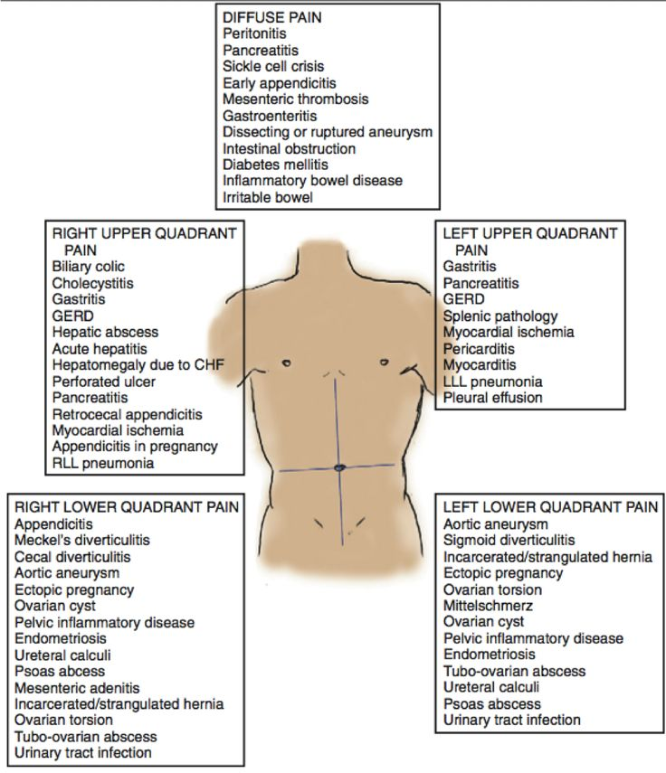 abdominal pain adult