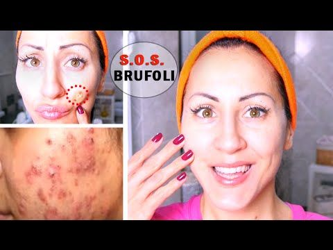 BRUFOLI ADDIO!!! 3 METODI FACILI e VELOCI per FARLI SPARIRE !!! - How to Get Rid of Acne - YouTube
