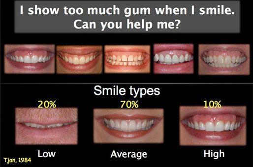 Gummy Smile Types