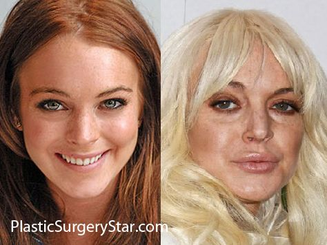 Celebrities Who Don't Do Botox - BecomeGorgeous.com