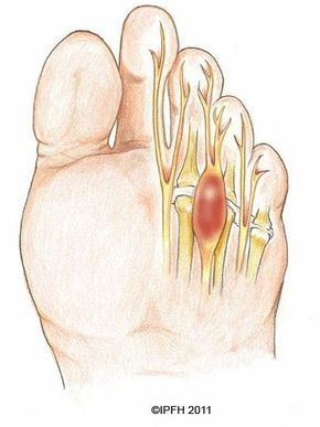 FOOT PAIN: Could it be Morton's neuroma?