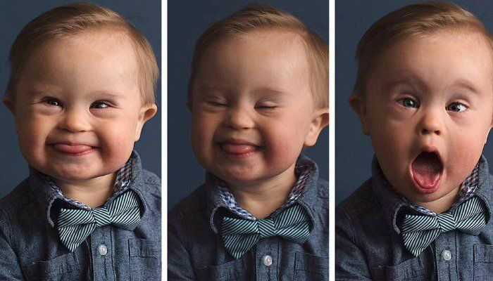 Mom Asks OshKosh To Feature Her Son With Down Syndrome In Ad Campaign #photography http://www.scarymommy.com/kids-with-down-syndrome-excluded-from-ads/