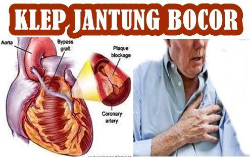 obat herbal untuk katup jantung bocor