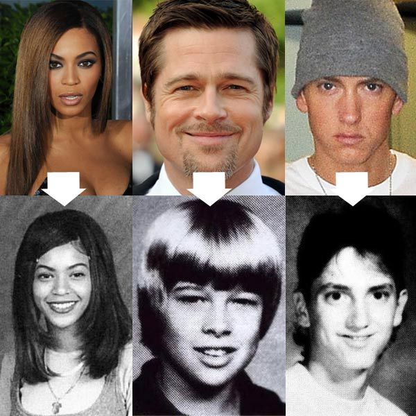 Picture 6 of 8 - Before After Celebrity Plastic Surgery ...