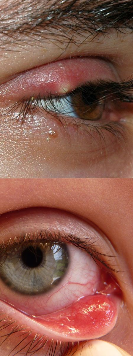 Home Remedies for Stye in Eye